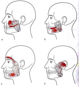 顎関節症 チェック 画像