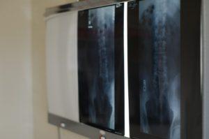 変形性股関節症セルフケアイメージ画像