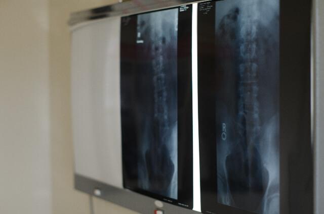頸部脊柱管狭窄症とは