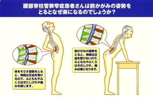 腰部脊柱管狭窄症 チェック方法