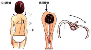 脊柱側弯症 チェック方法