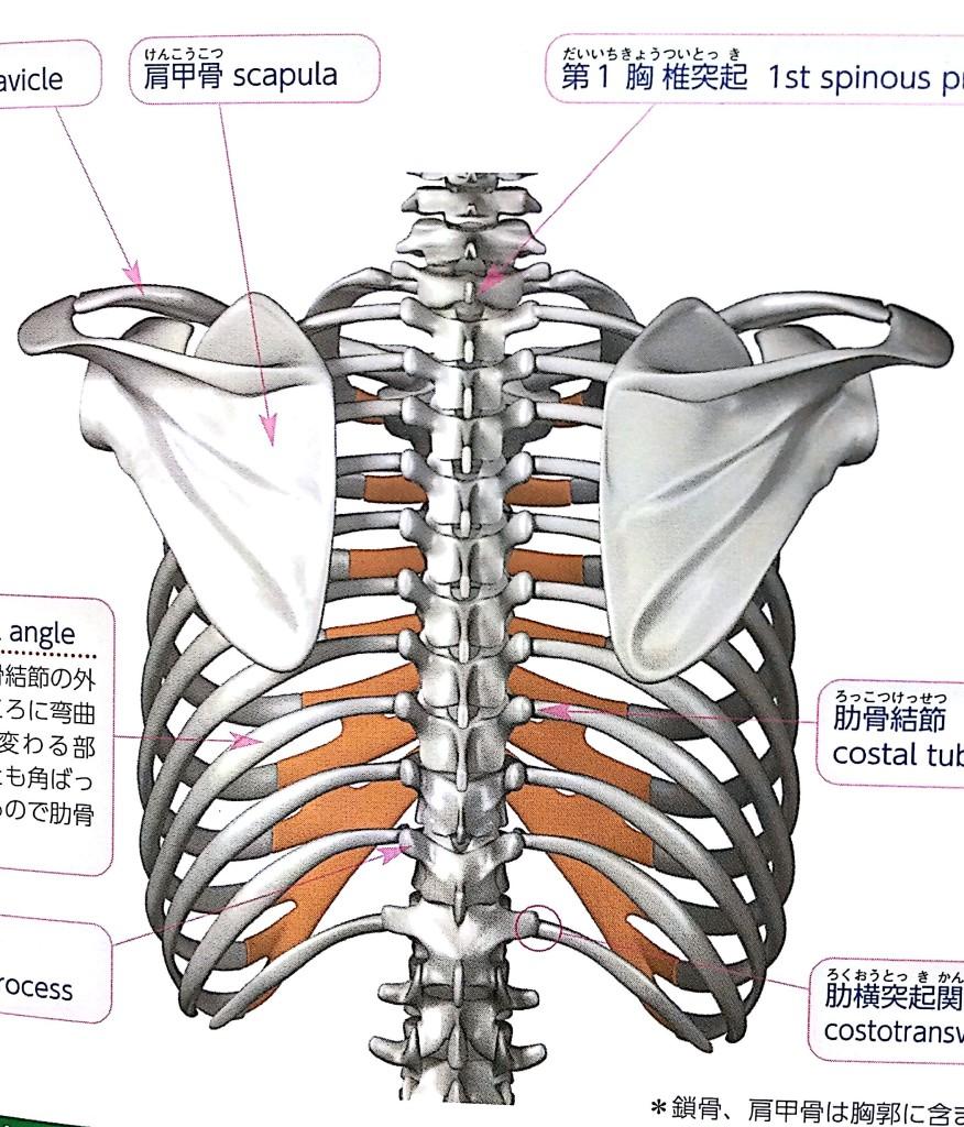 脊柱側弯症 画像