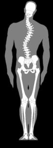 脊柱側湾症イメージ画像