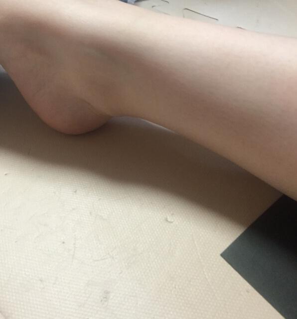 踵の歪み矯正