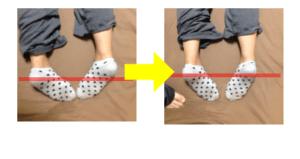 足の長さ矯正