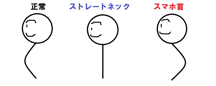 スマホ首のイメージ画像